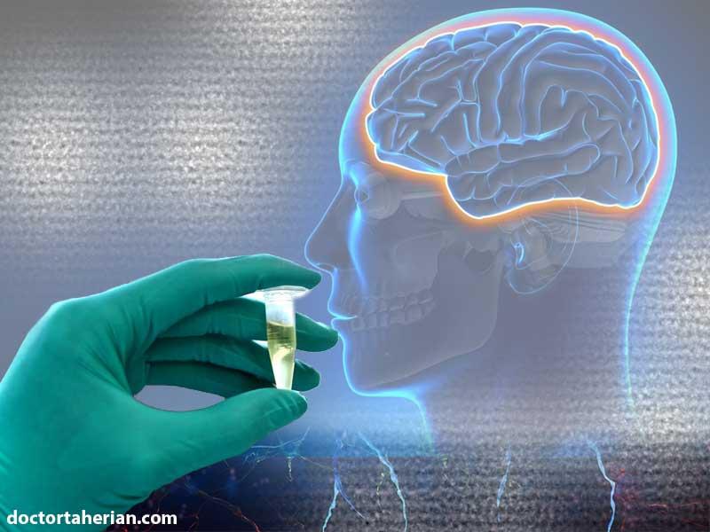 مایع مغزی نخاعی چیست؟