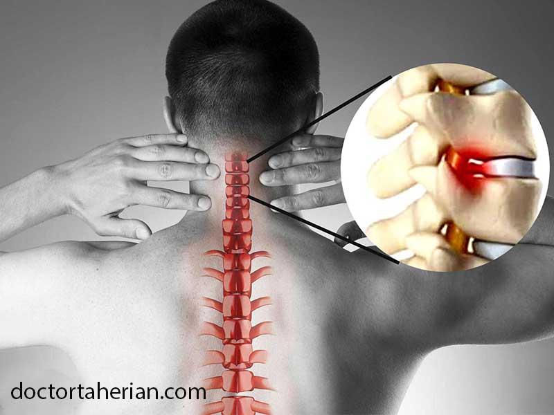 دیسک گردن؛ علائم تا درمان بدون جراحی
