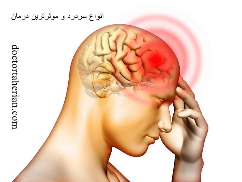 انواع سردرد؛ علائم و درمان سریع آن